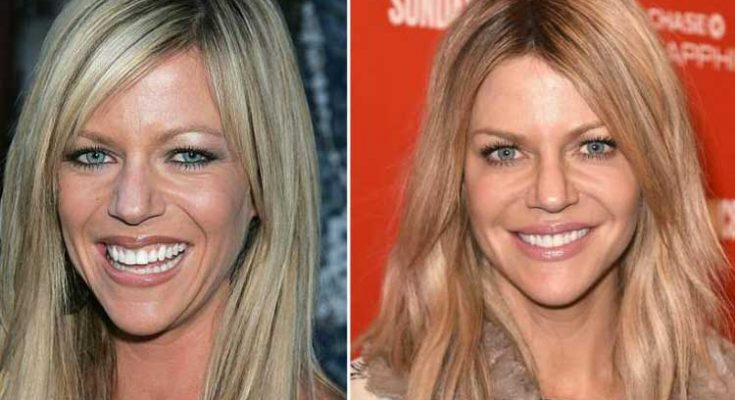 Kaitlin Olson Before and After Plastic Surgery