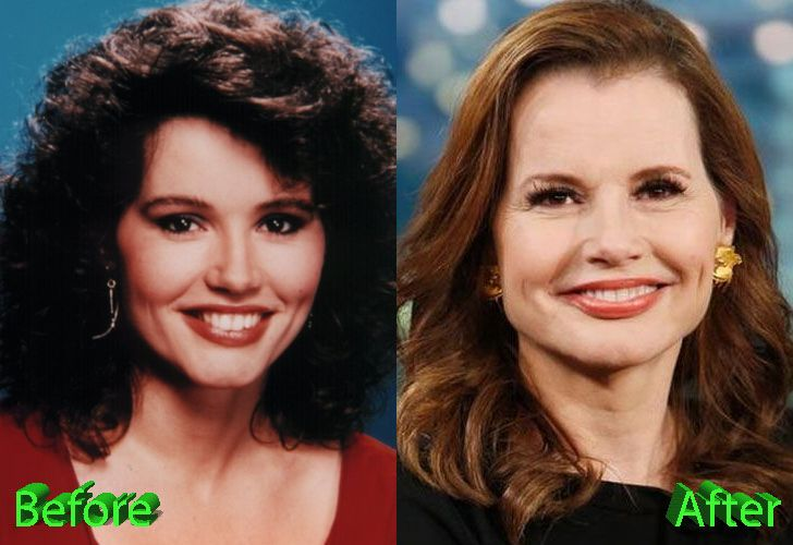 Geena Davis Before and After