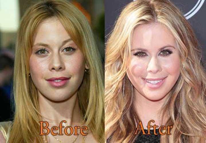 Tara Lipinski Before and After