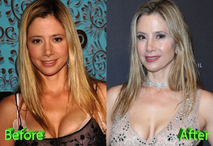 Mira Sorvino Before and After