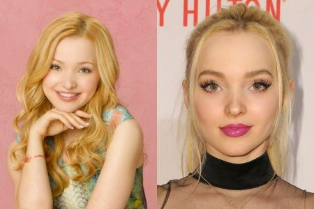 Dove Cameron Before and After Pictures