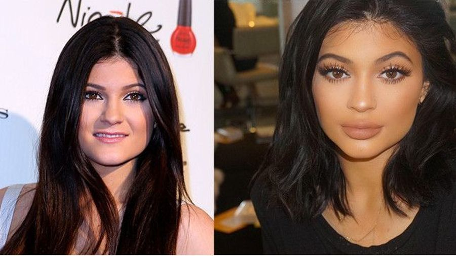Kylie Jenner face changing over the years