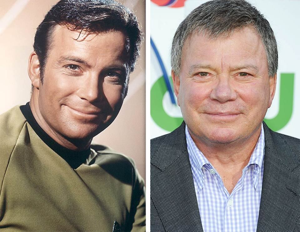 William Shatner before and after